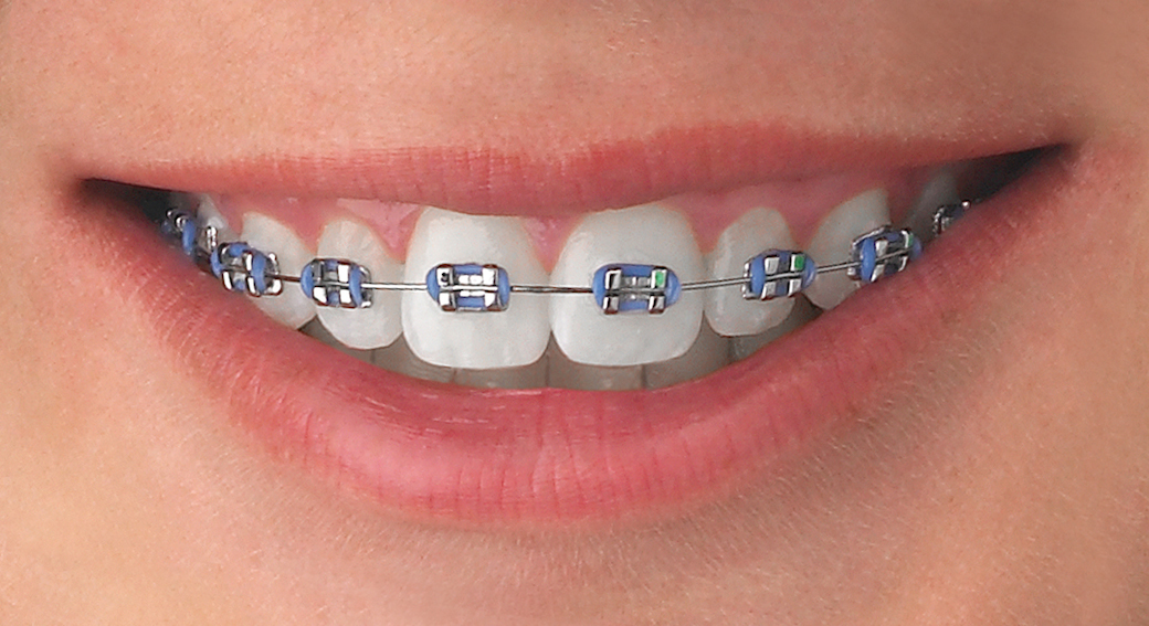 Ortodoncia clinica dental gonzalez oliver