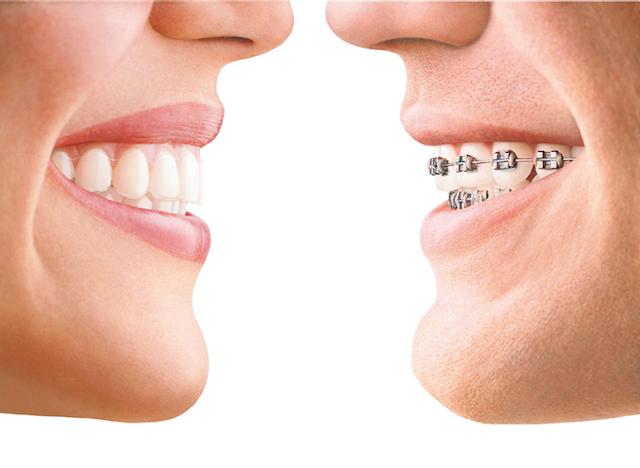 Invisalig versus ortodoncia